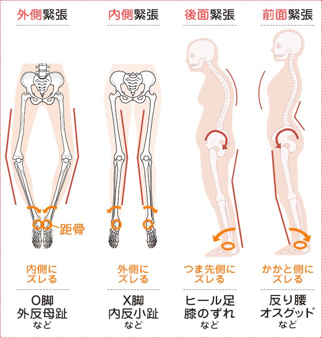 骨格の比較